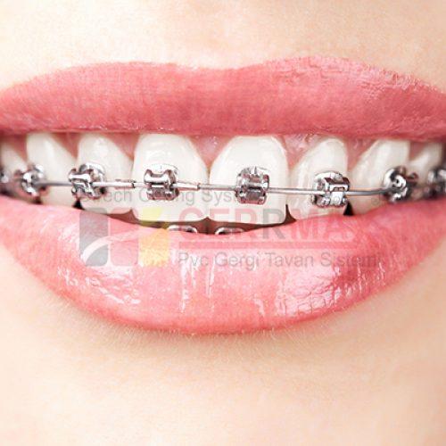 Diş ve Ağız Sağlığı Gergi Tavan Görselleri